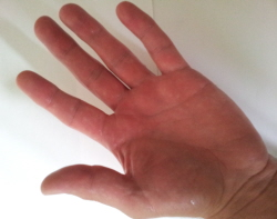 What Causes Sweaty Palms