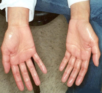 Learn How to Stop These Sweaty Palms